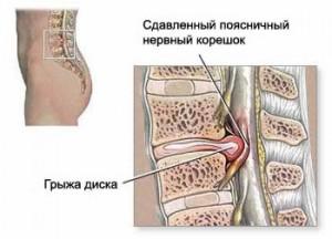 pozvonochnik_sdavlenie_nerva_gryjei_diska_1