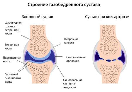 mehanizm-razvitiya-koksartroza