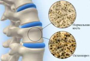 97865581_osteoporoz