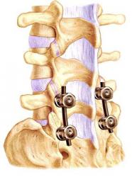 hirurgiya-pozvonkov