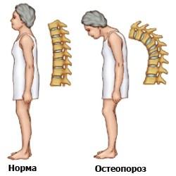 simptomi-osteoporoza2
