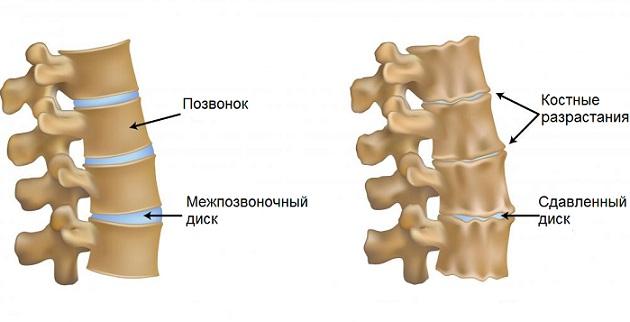 unkovertebralnyj-artroz-shejnogo-otdela-pozvonochnika